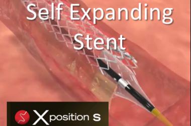 Xposition S – Self Expanding DES