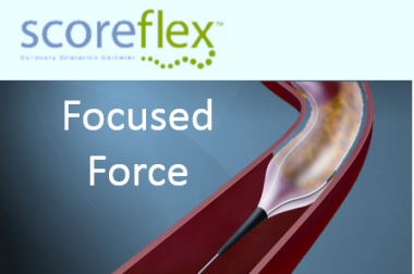 ScoreFlex – Focus Force Balloon