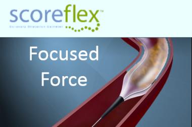 ScoreFlex – Focus Force Balloon